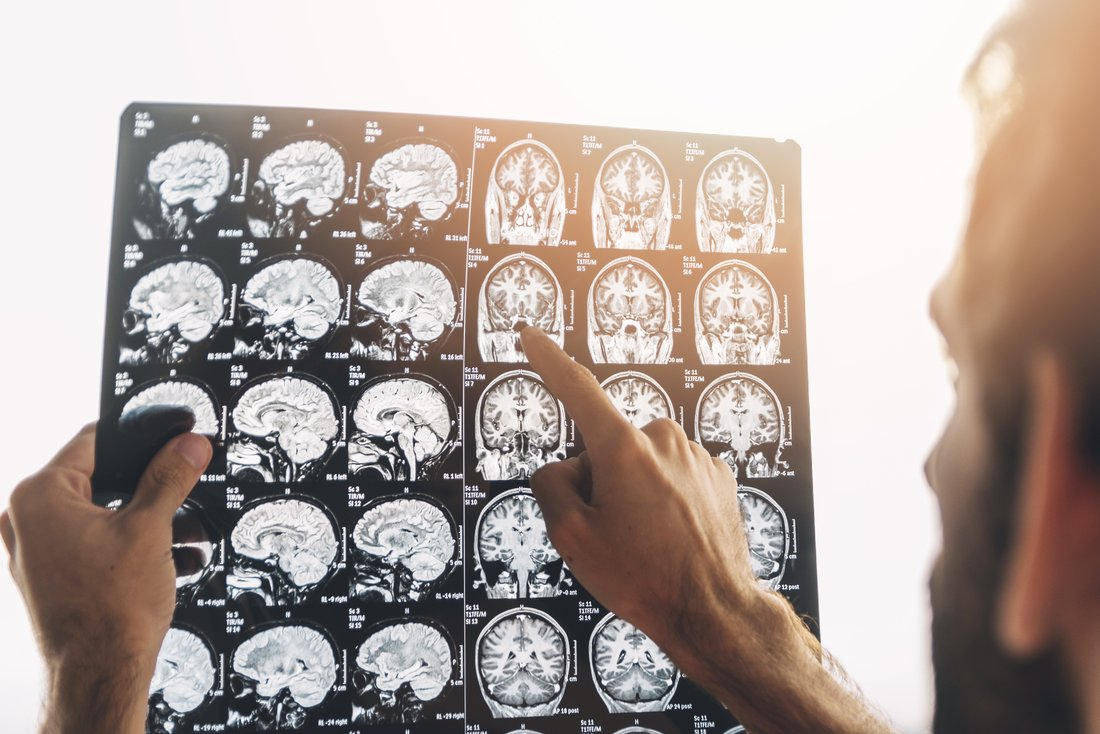 A man is examining X-rays of his head.